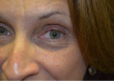 Eyelid mole postop