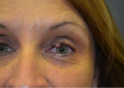 Eyelid mole preop
