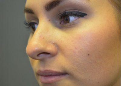 Postop nasal mole