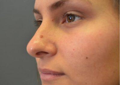 Preop nasal mole