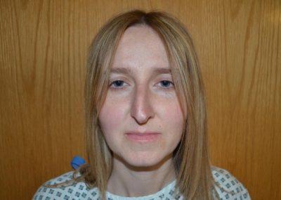 Preop nasal tip