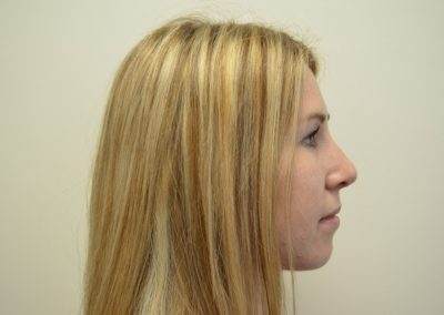 Rhinoplasty 5 POST Side view