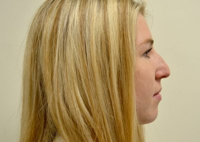 Rhinoplasty 5 PRE side view