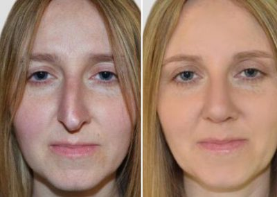 darryl coombes london rhinoplasty before after